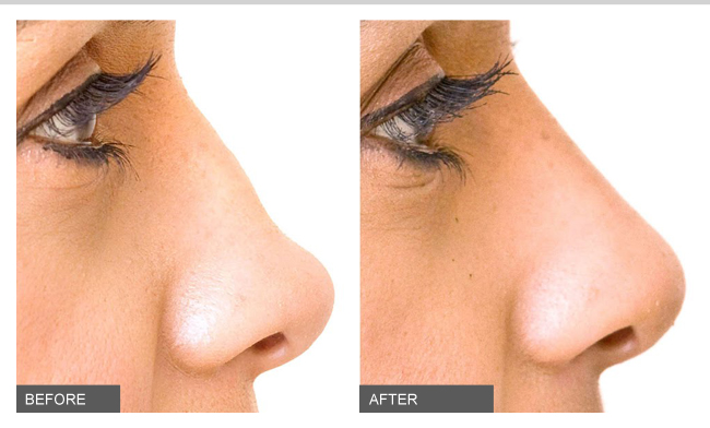 Dermal-Fillers-Nose-Earlobe-shaping
